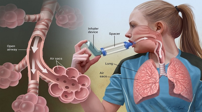How to survive an asthma Attack